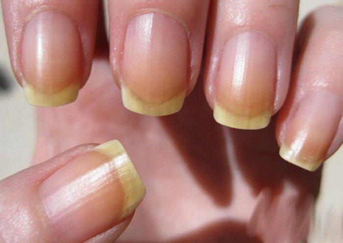Не здоровые ногти фото